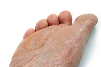 Indianapolis Podiatrist | Indianapolis Athlete's Foot | IN | Alona Foot and Ankle Center |