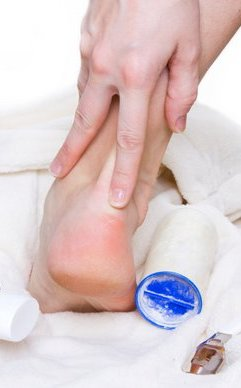 Indianapolis Podiatrist | Indianapolis Calluses | IN | Alona Foot and Ankle Center |